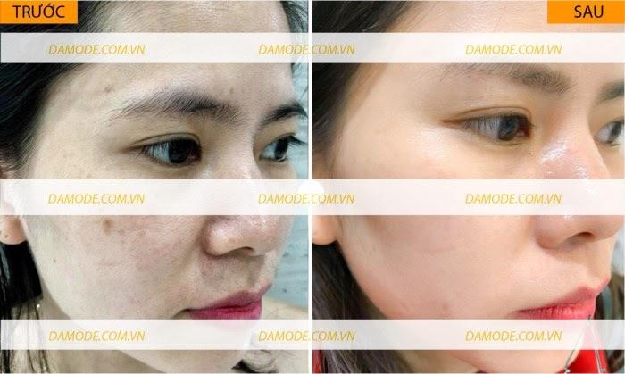 Damode Beauty Reviews