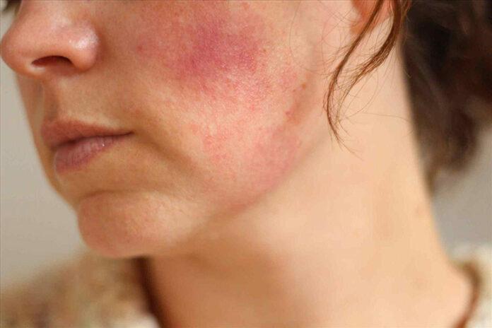 làm gì khi bị dị ứng da