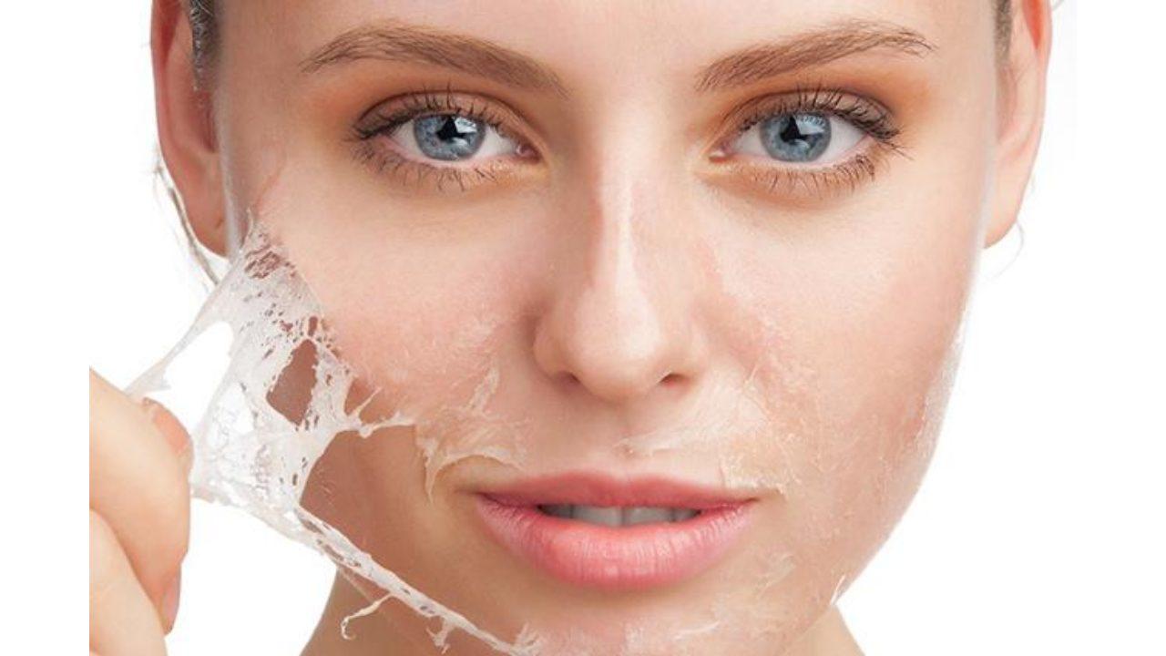 Top 6 cách dưỡng ẩm cho da khô an toàn, hiệu quả