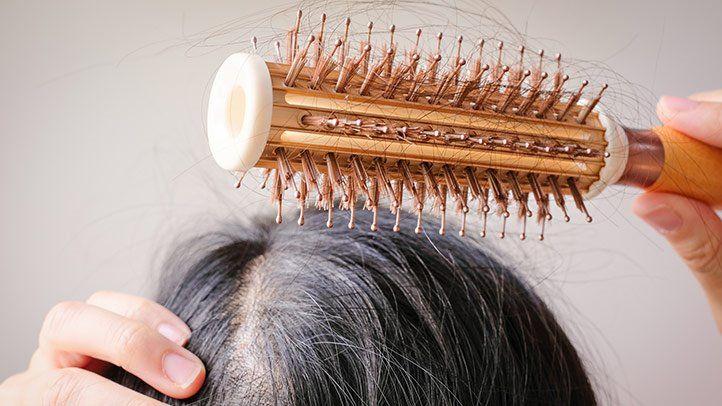 TOP 8+ dầu gội ngăn rụng tóc tốt nhất hiện nay 2021