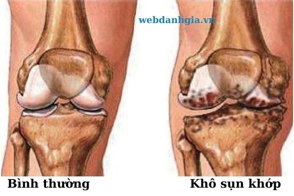 Tai Sao Nhieu Nguoi Tre Hien Nay Bi Dau Nhuc Xuong Khop Som 1 (5)
